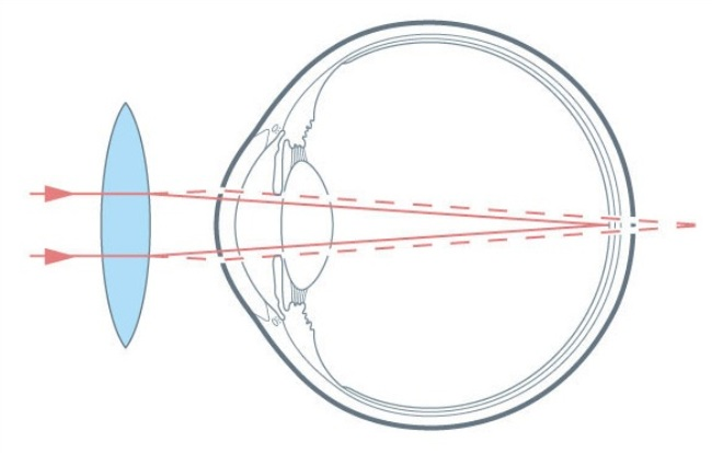 Измерение рефракции