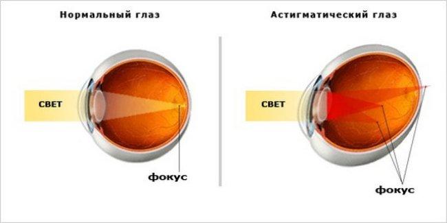 Схема рефракции